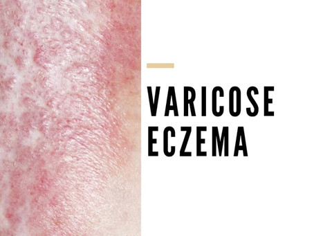 What's to know about varicose eczema?