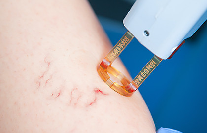 Advantages of laser therapy for varicose veins