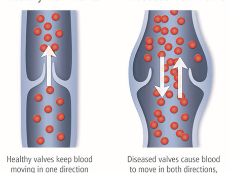 Which occupations are most often linked to varicose veins?