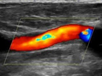vascular-lab.jpg