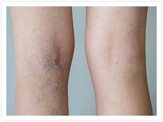 Deep Secrets Your Spider Veins Could be Trying to Tell You