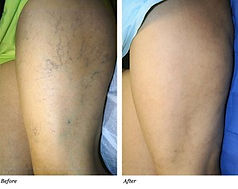 sclerotherapy before and after.jpg