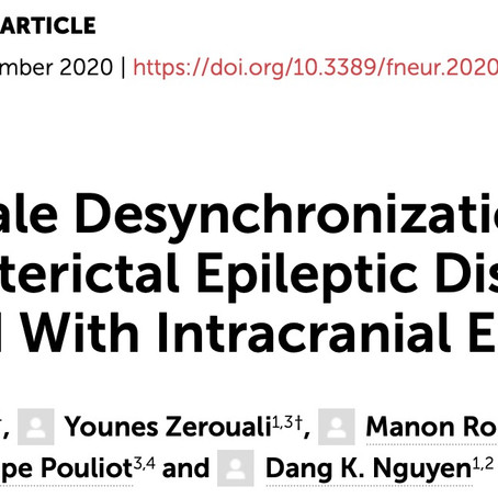 Large-Scale Desynchronization during Interictal Epileptic Discharges recorded with Intracranial EEG