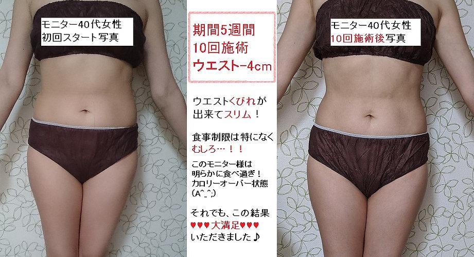 腹部痩せモニター写真.jpg