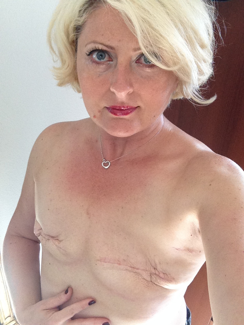Tammey Grable-Woodford bilateral mastectomy