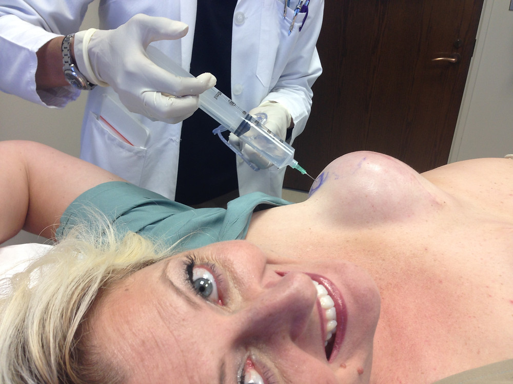 Tammey Grable-Woodford receiving a saline fill in post mastectomy expander as part of breast reconstruction