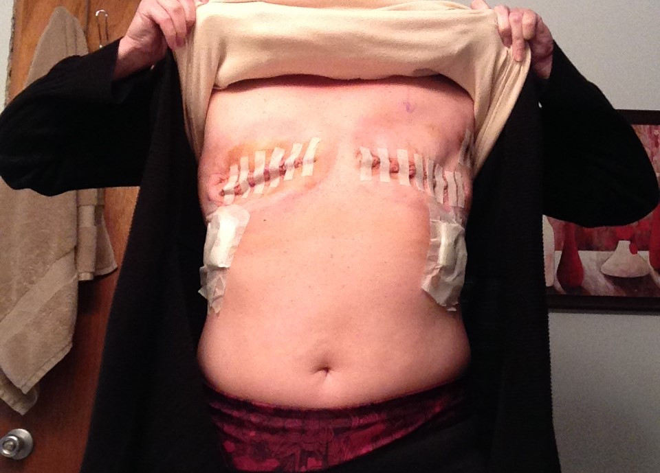 Tammey Grable-Woodford bilateral modified radical mastectomy healing