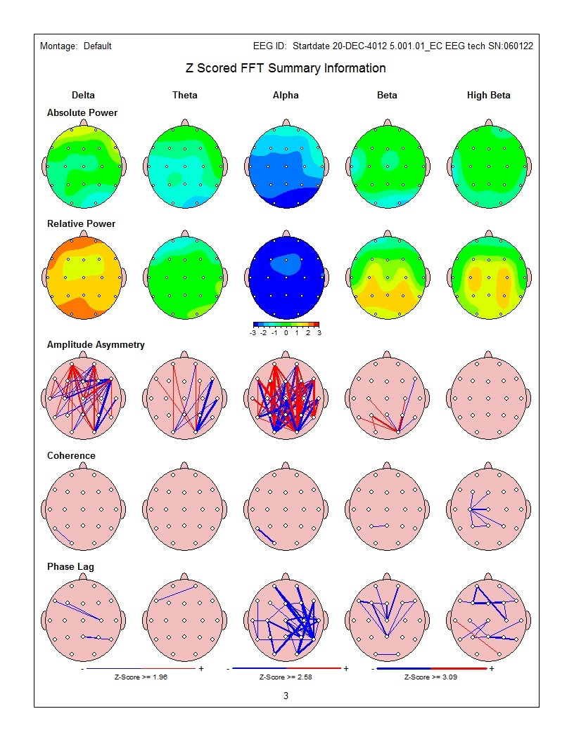 Surface QEEG Results
