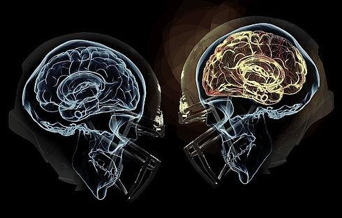 concussion_edited.jpg