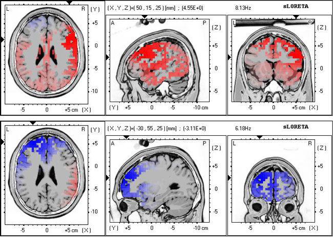 Full Brain Map