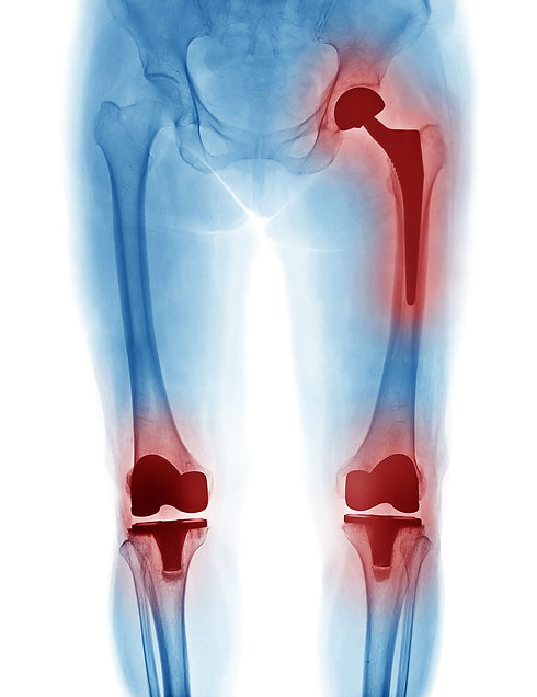 X Ray image of hip replacement and knee