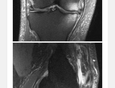 Joint Preservation: Knees
