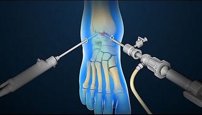 ארטרוסקופיה- ניתוח זעיר פולשני במפרק הקרסול