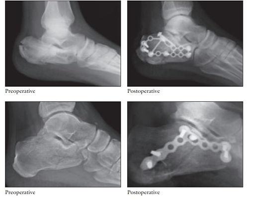 צילום רנטגן של שבר בעקב מ-2 זוויות צילום (משמאל). ולאחר נתיחו וקיבוע השבר (תמונות מימין)