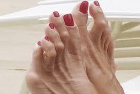 hammet toe