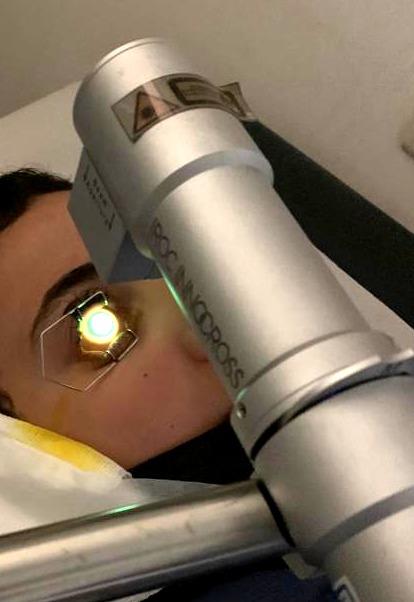הקרנת עין מטופל במכשיר המקרין אור אולטרא סגול