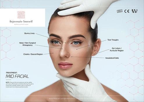 Treatment-Guide-Mid-Facial.jpg