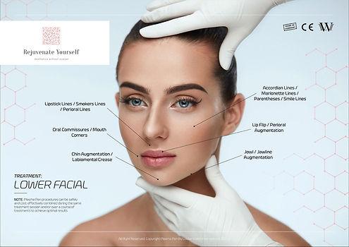 Treatment-Guide-Lower-Facial.jpg