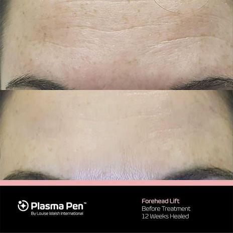 Forehead Lines.jpg