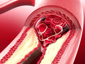 The Ultimate Guide to Understanding Your Cholesterol Numbers