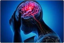 brain injury.jpeg