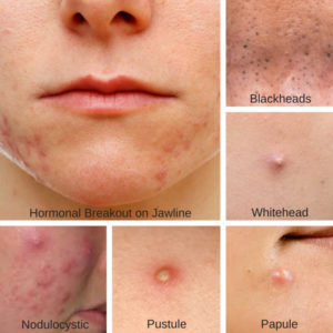 acne-treatment-for-acne-types-different-