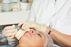esthetics-stlaging-acne.jpg