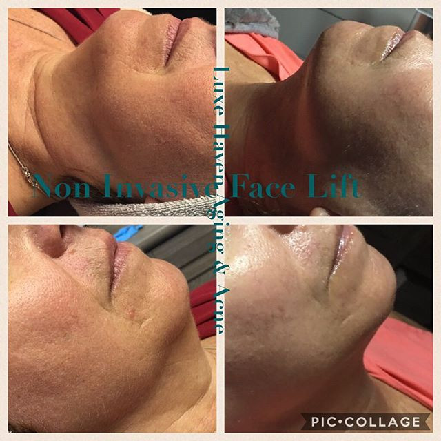 More of my work! Non-invasive lifting tr