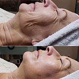 Microcurrent & cupping facial results.jp