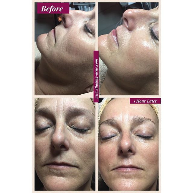 Before & After Peptide lift + Microcurre