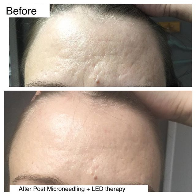 Before & after Microneedling for acn