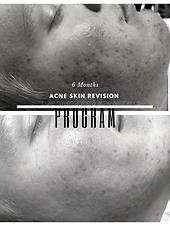 Skin revision program.png