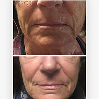 Sculplla Filler Facial ~ notice how much
