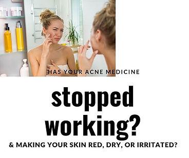 acne treatment without medicine st louis