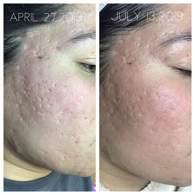 Where to get acne scars treated in S