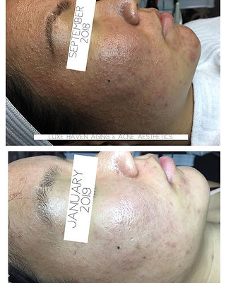 Oil Control Acne Kit  + Ultimate Skin Scrubber