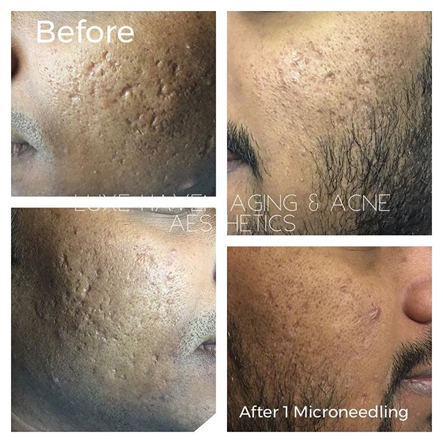 Before & After 1 Microneedling Session w