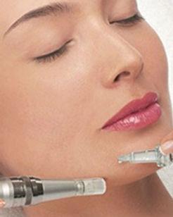microneedling-acne-scars-stl.jpg