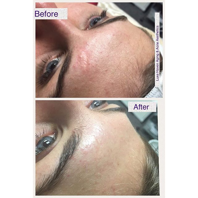Scar corrected with Microneedling Be