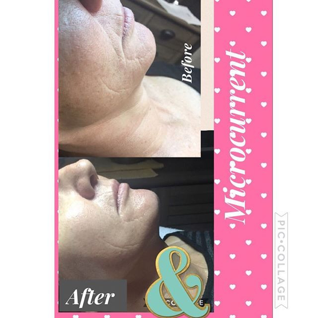 A Lift in a day _ Luxe Haven Aging & Acn