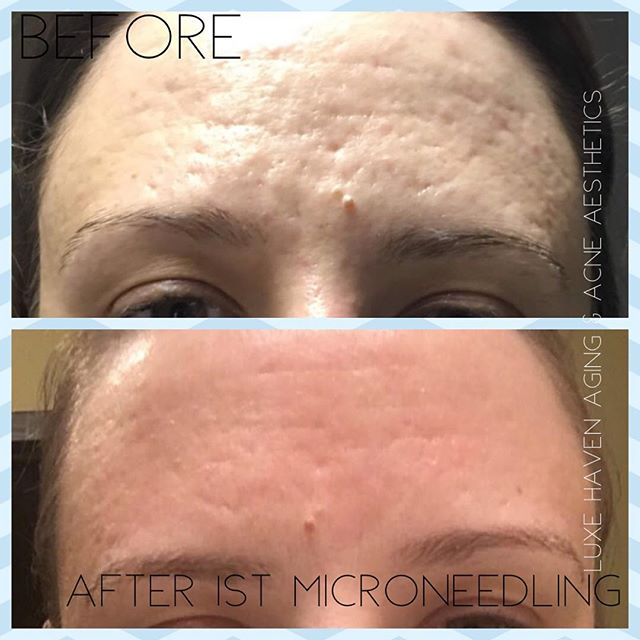 Before & After of Acne forehead scarring