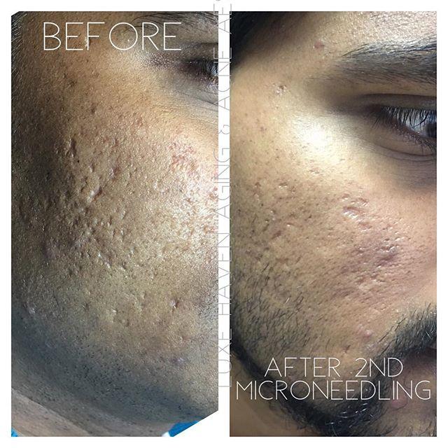 Our acne scar treatment photos