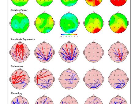 Professionelle Befundung des Gehirns mit qEEG