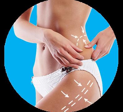Tratamientos para adelgazar-lipo láser-moldeamiento corporal- reducción de medidas- Atrix laser- lipo sin cirugia- medicina estetica-medicina estetica sin cirugia- lipo no invasiva-lipolisis laser- lipo laser precio-laser lipolisis
