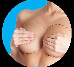 mamoplastia Manizales reducción de senos aumento de senos cirugía plástica Beatriz Restrepo Cirugía plástica implante mamario prótesis mamaria