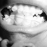 braces-1254414.jpg