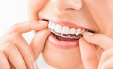 bigstock-Woman-Wearing-Orthodontic-Sili-