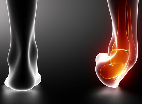 Ankle Sprains | Denise Godfrey, Physio