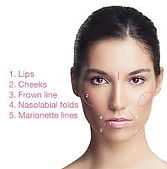 fillers face areas.jpg