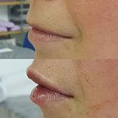 lip filler2.jpg